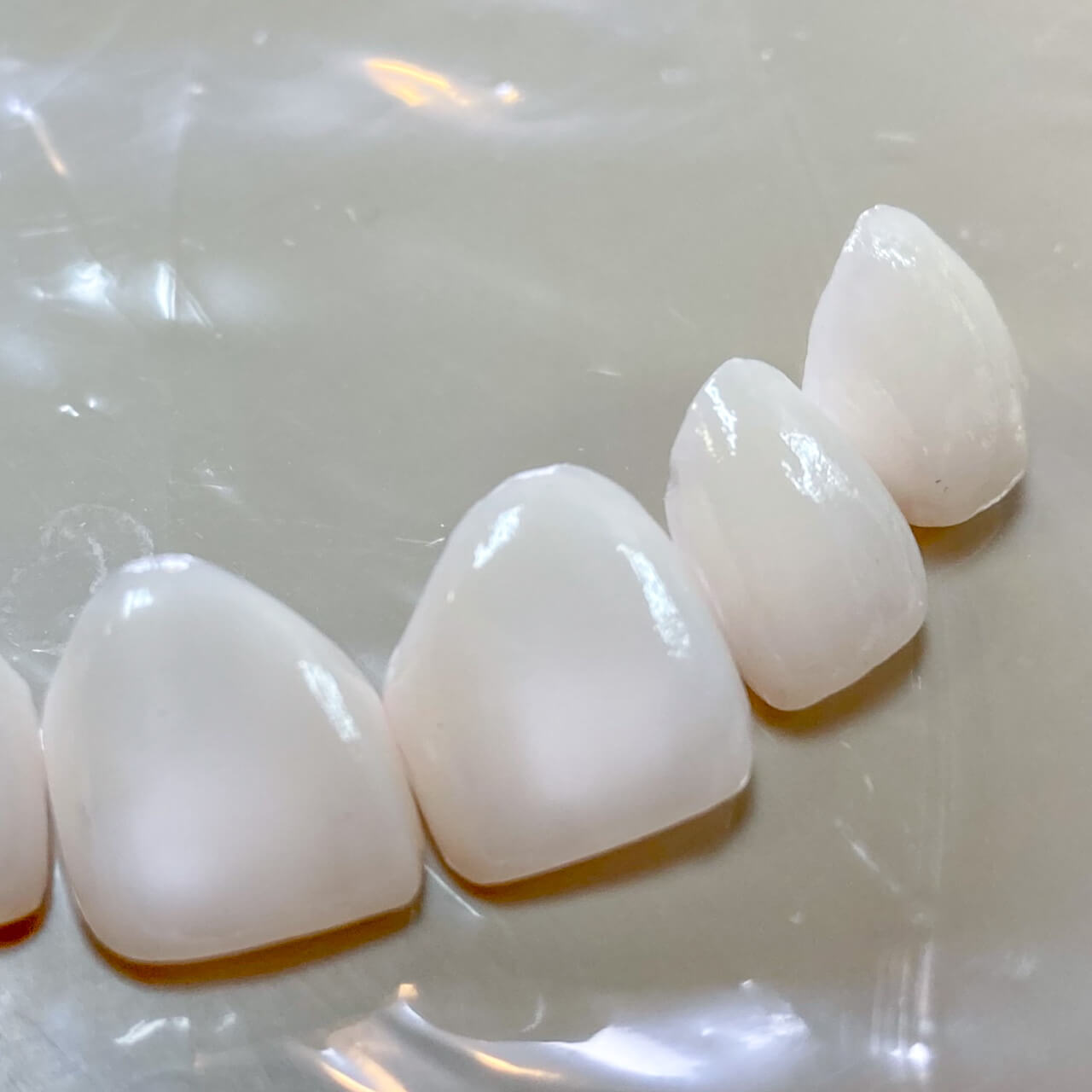 A dental model showing what veneers can do for your smile