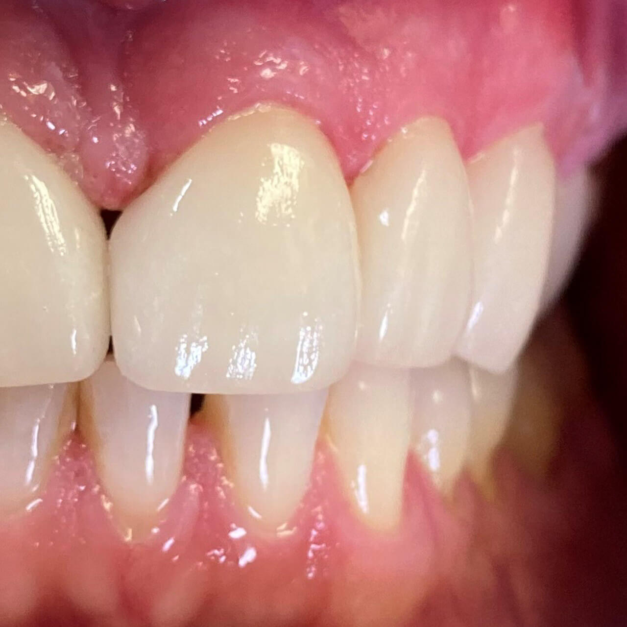 Patient receiving dental bonding treatment to correct minor dental imperfections