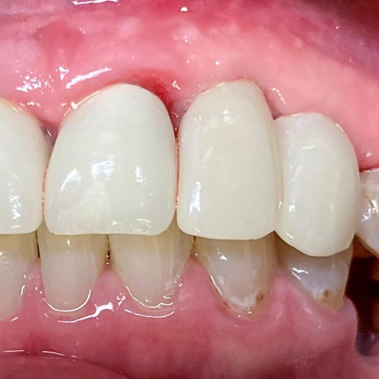 A new implant crown for a patient