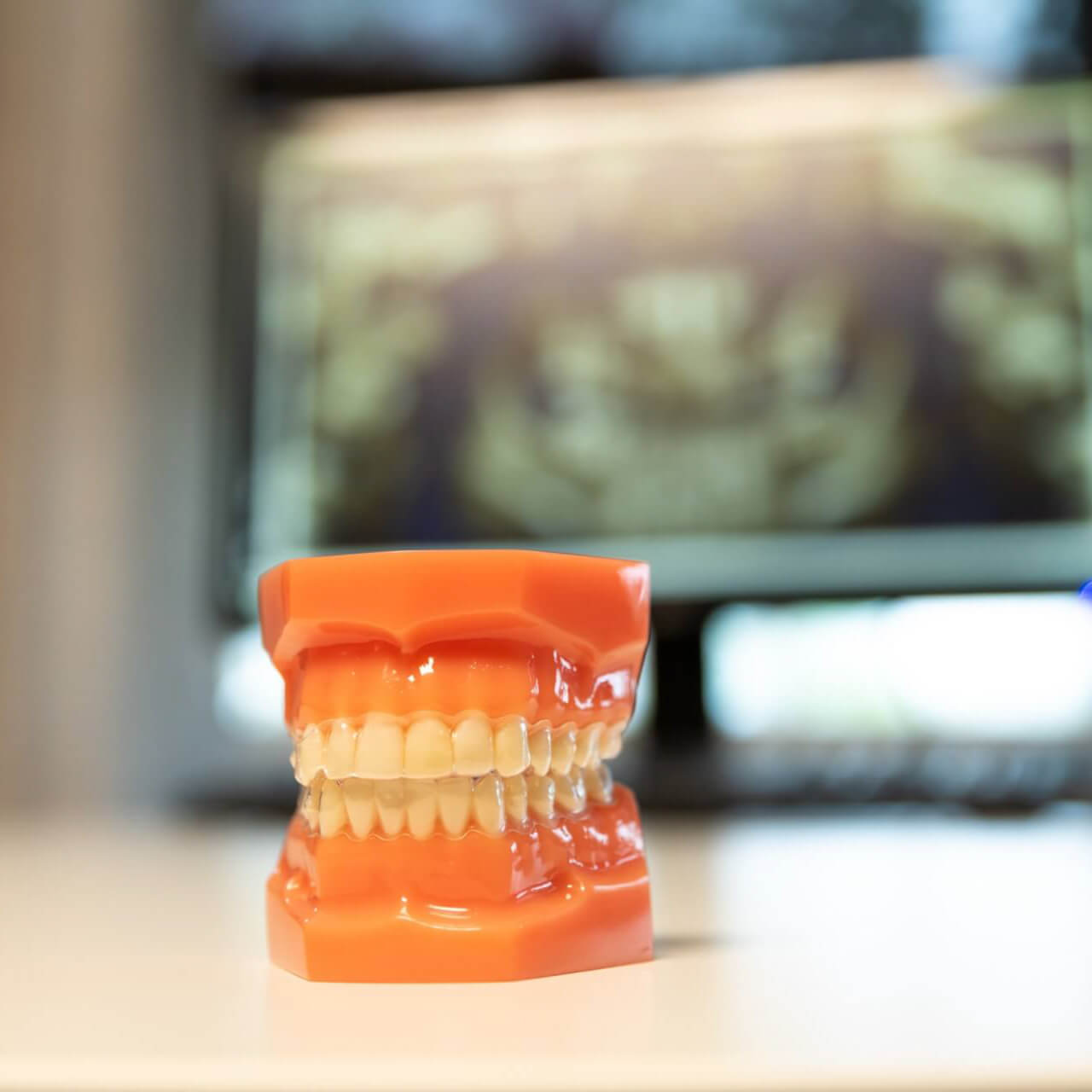 Invisalign can help improve your smile and gum health
