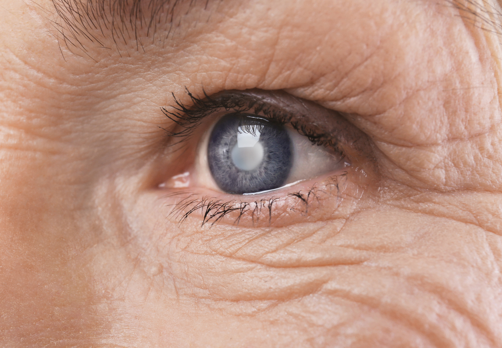 Cataracts: What You Need to Know to Protect Your Vision