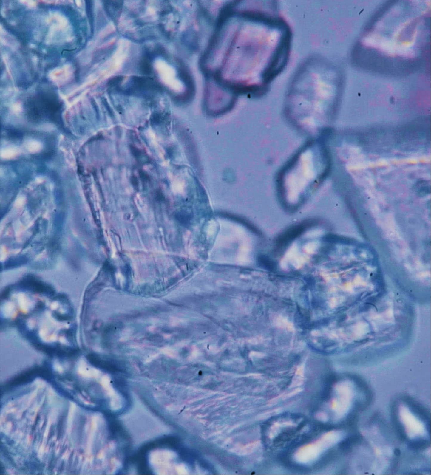 Crystals under a microscope