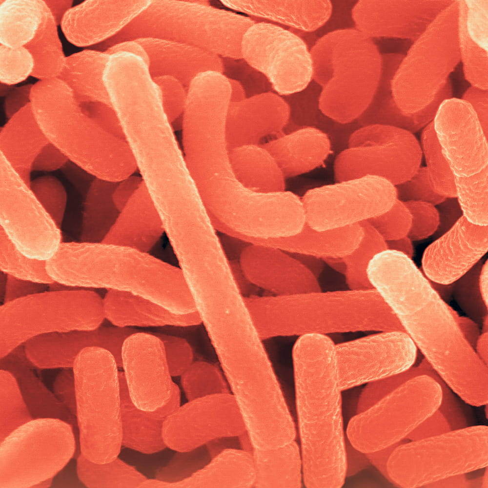 A micrograph of bacteria