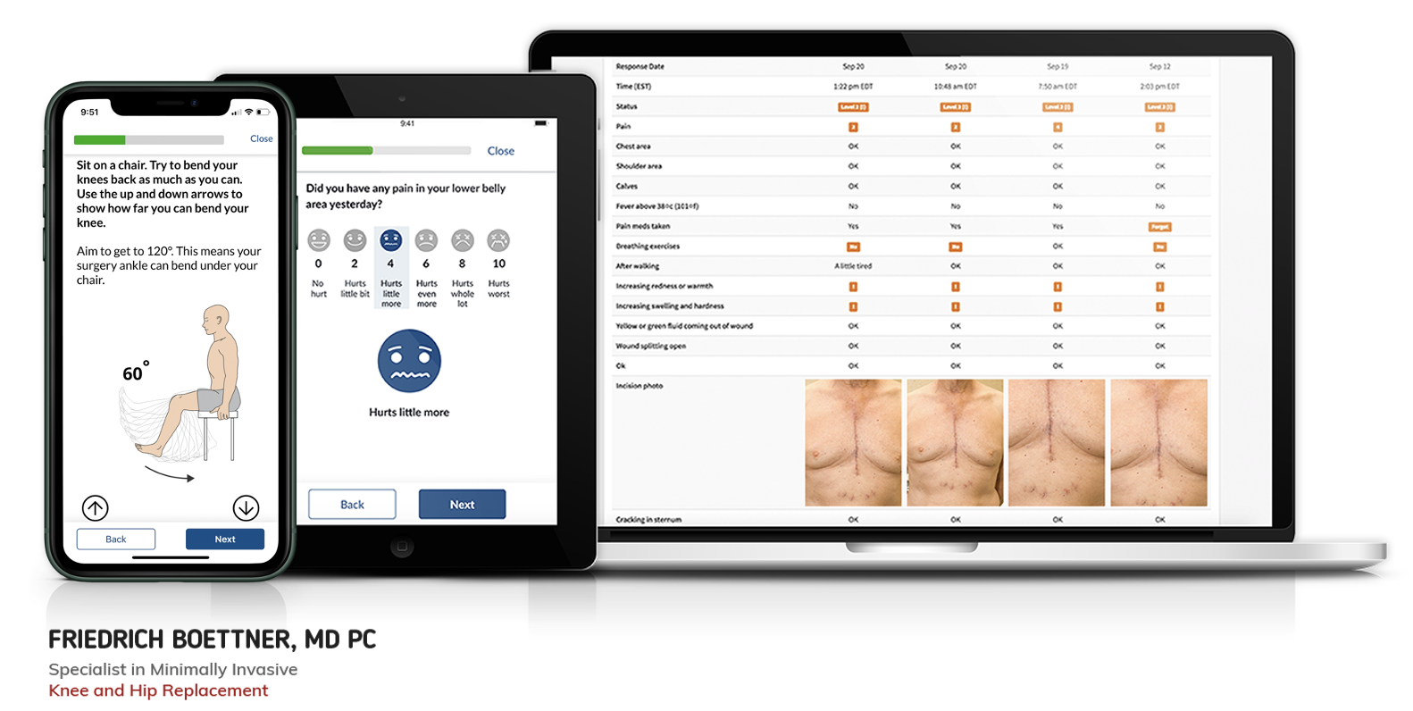 New Case Study: Collecting Patient-Reported Outcomes For Total Joint Replacement
