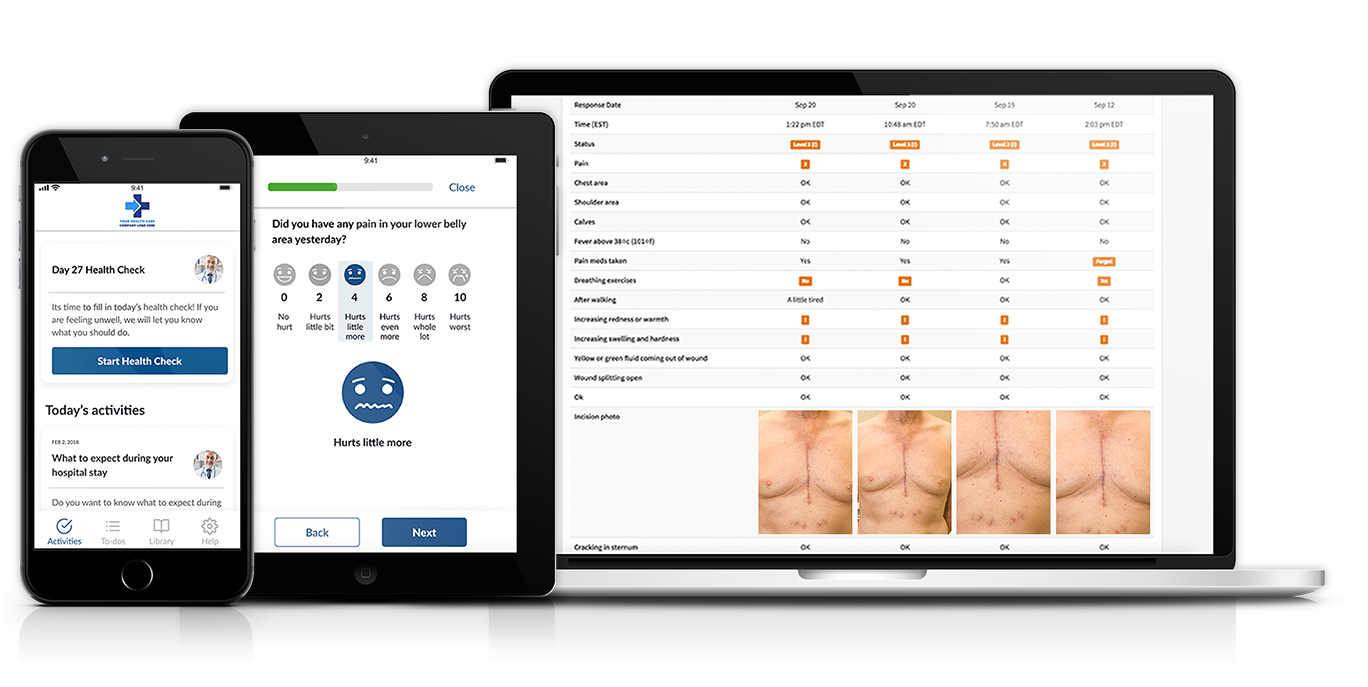 How to Implement Surgical Remote Monitoring: Why Surgical Remote Monitoring?