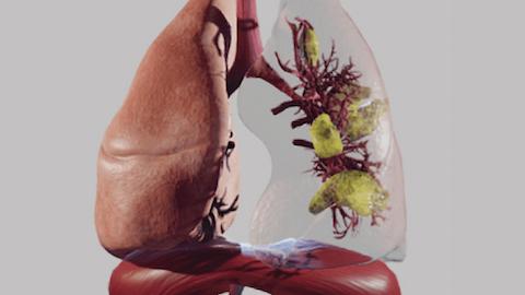 Lung Anatomy & Pathology