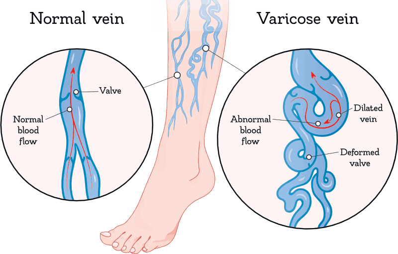 Varicose Vein Deformed Valve