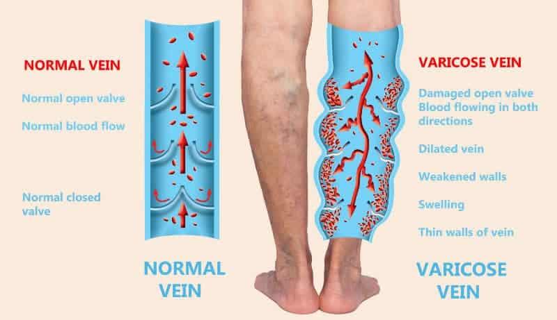 Varicose Vein Leg Swelling
