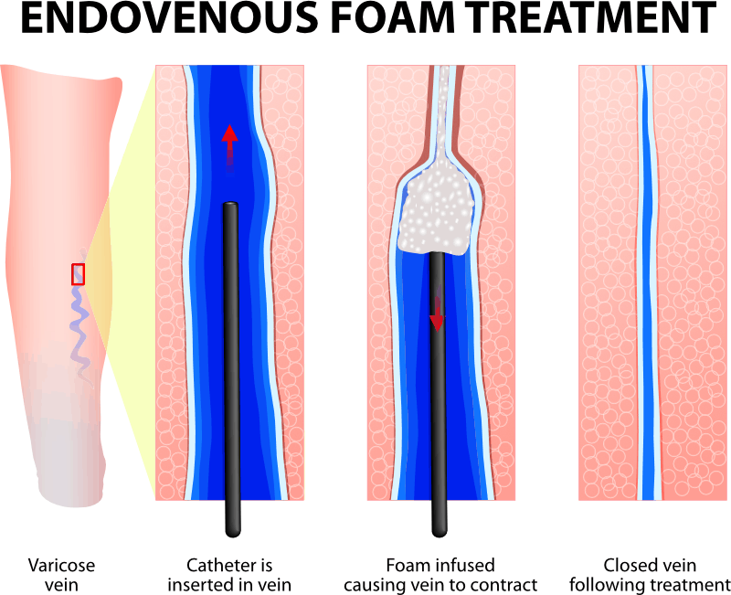 Sclerotherapy Foam treatment