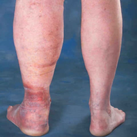 What Does Leg Swelling Look Like