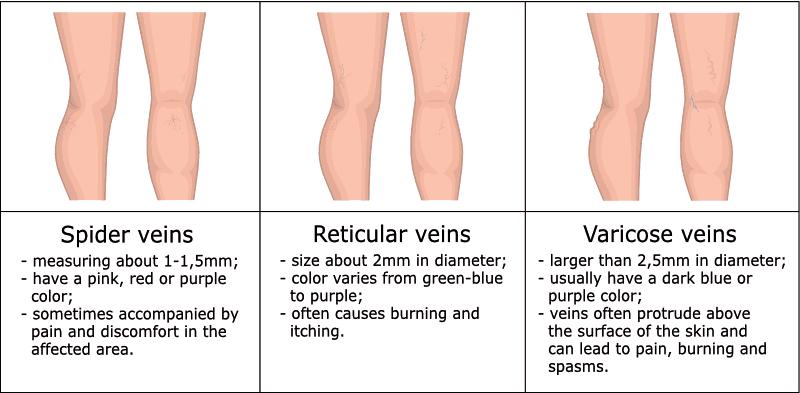 spider veins vs reticular veins