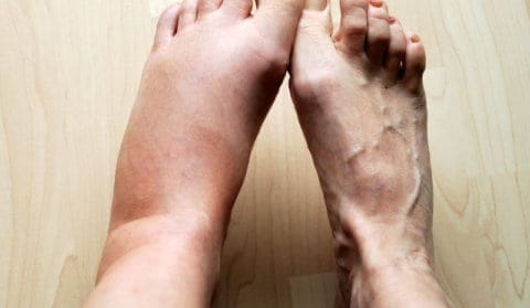 What Causes Swelling Legs
