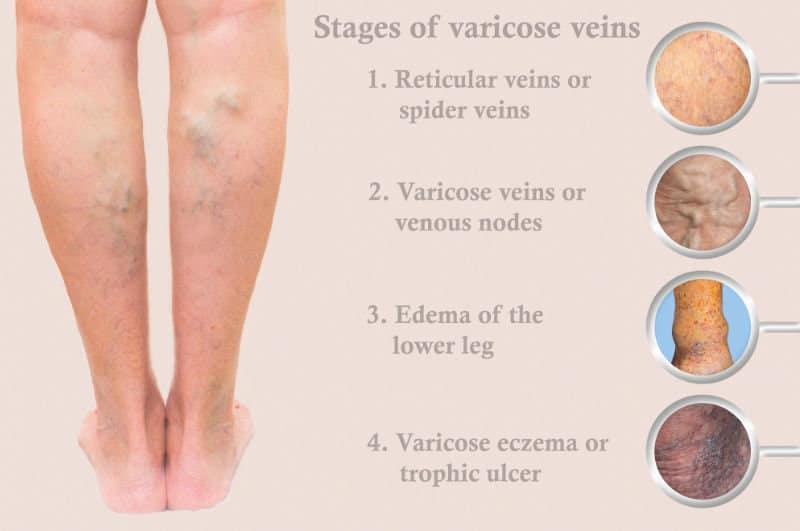 Stages Of Vein Disease