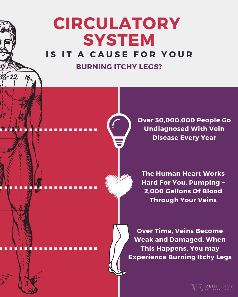 Cause Of Burning Legs Infographic