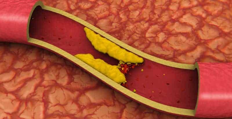blood clots in legs