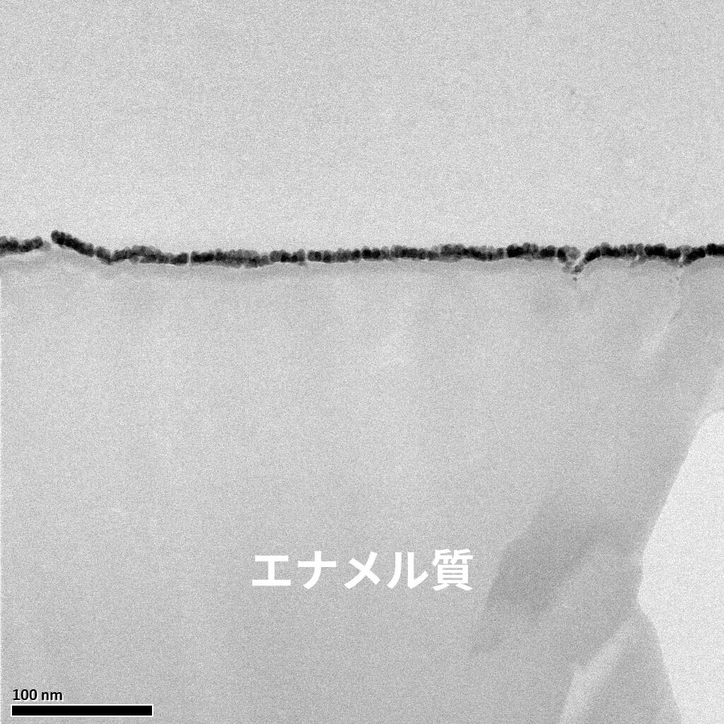 未処理のエナメル質画像