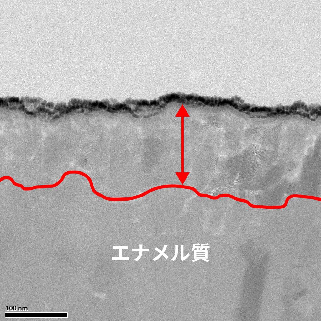 結晶新生のエナメル質画像