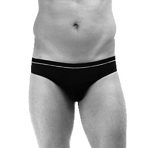 Skin Code LA Service - Men's Laser Hair Removal Bikini