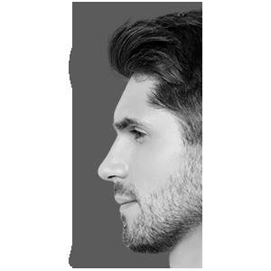 Skin Code LA Special - Laser Hair Removal Men