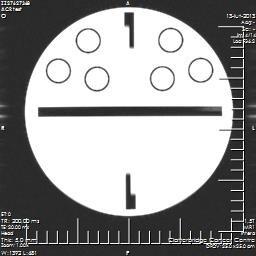 Pro-MRI image