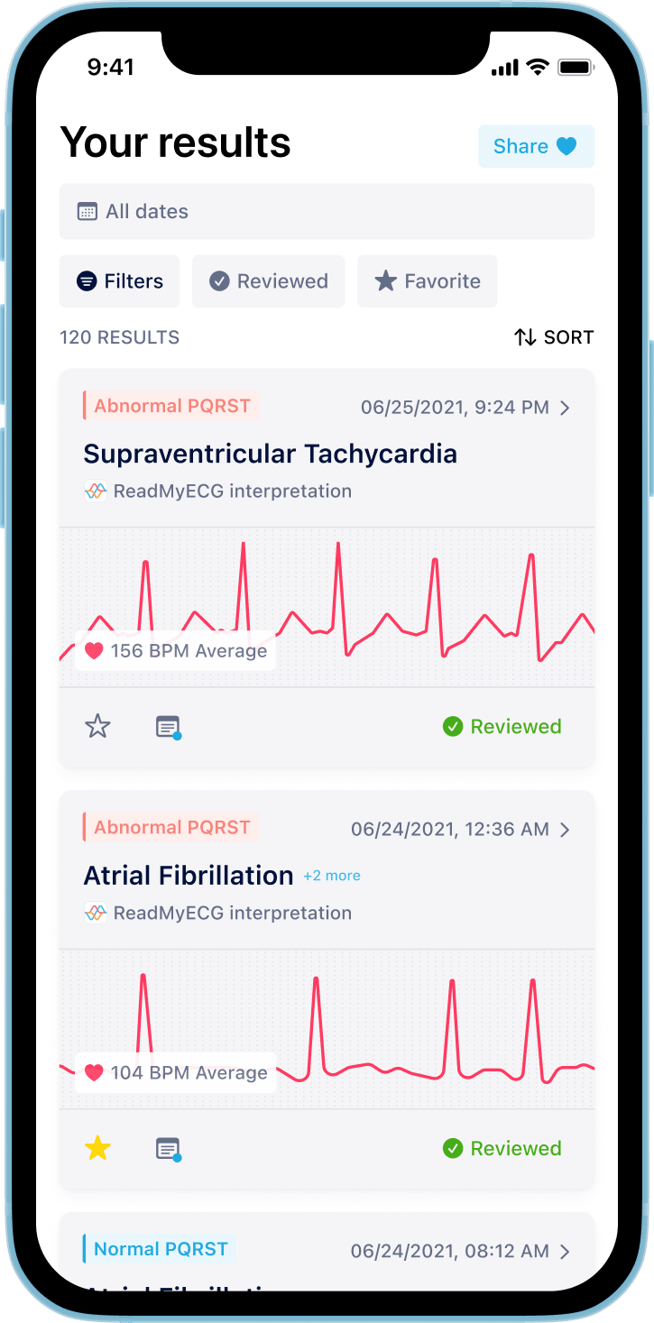 ReadMyECG - Filter your Apple Watch ECGs. Calculate PQRST values. Add notes on each ECG to symptoms, movement, diet, and more.