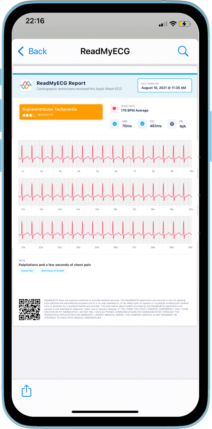 ReadMyECG - Learn about potential abnormalities in your PQRST intervals. Share your ECG reviews with friends, family, and doctors.