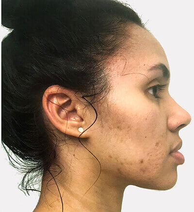 Image of our customer Rachel before using our product