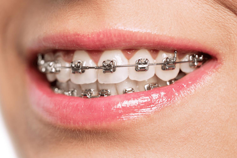 Radent Estetique & Implants