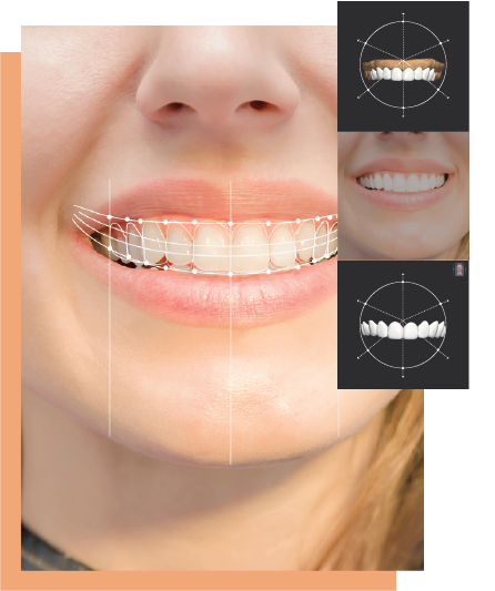 GlamSmile Veneers use high level 3D imaging technology to create beautiful, even, natural smiles. As a patient or dentist, you can rely on our digital imaging, precise millwork, top quality porcelain and precise fitting veneers.