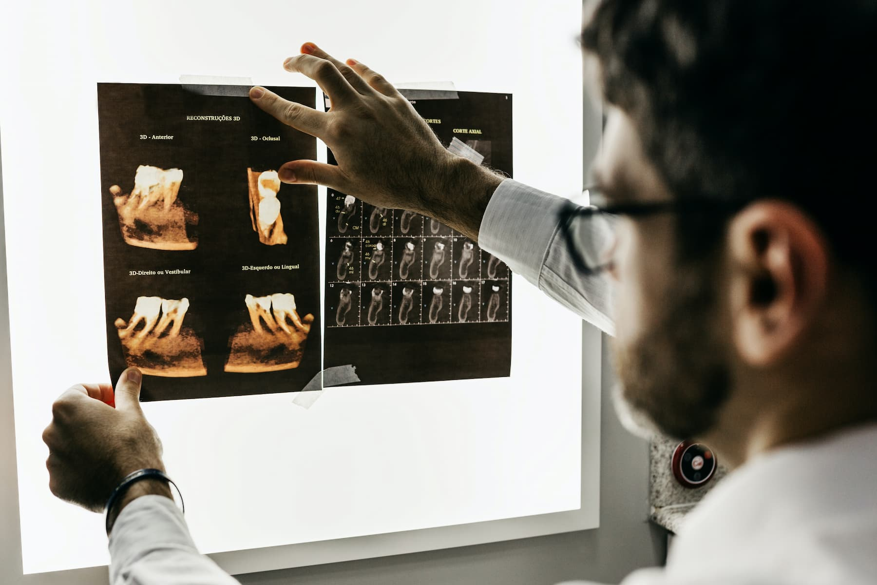 Doctor with medical scan results from personal injury case