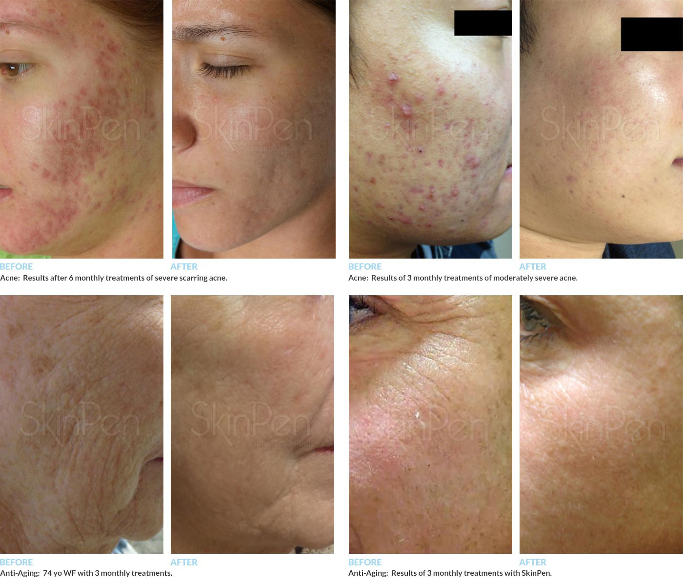Microneedling Before/After Photos