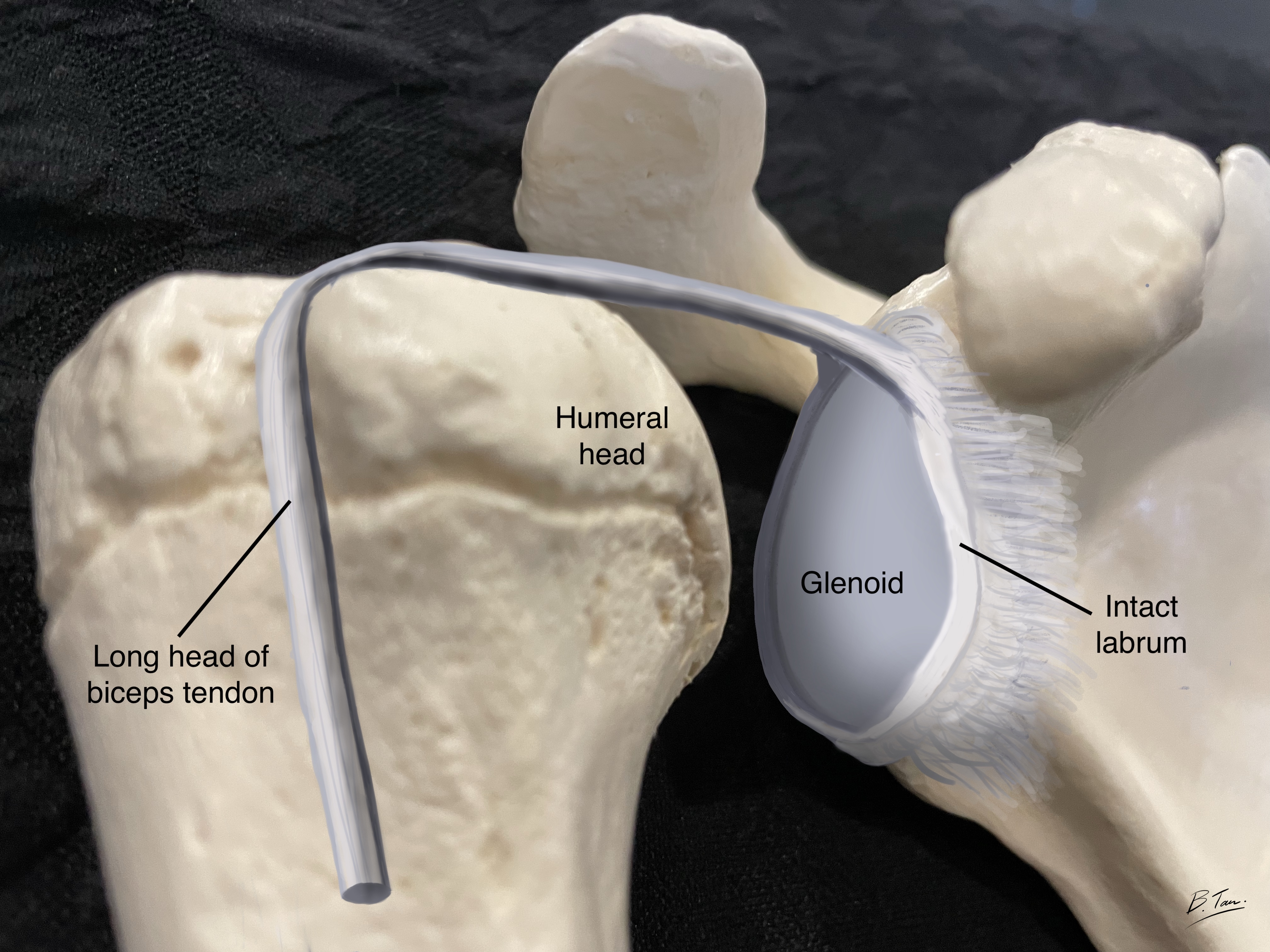Shoulder joint with intact labrum