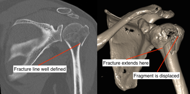 CT and 3D CT of proximal humerus fracture