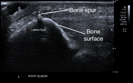 Ultrasound image of elbow bone spur and tennis elbow (lateral epicondylitis