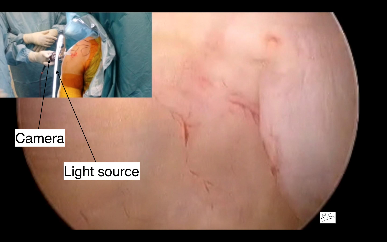 Shoulder arthroscopy (keyhole surgery)