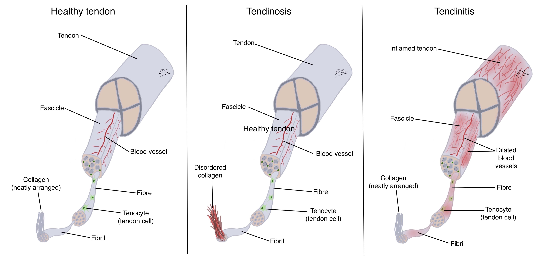Normal tendon vs tendinosis vs tendinitis