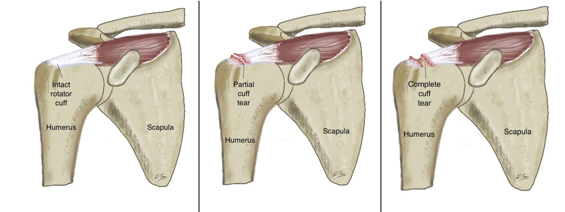 Intact cuff vs partial cuff tear vs full thickness cuff tear