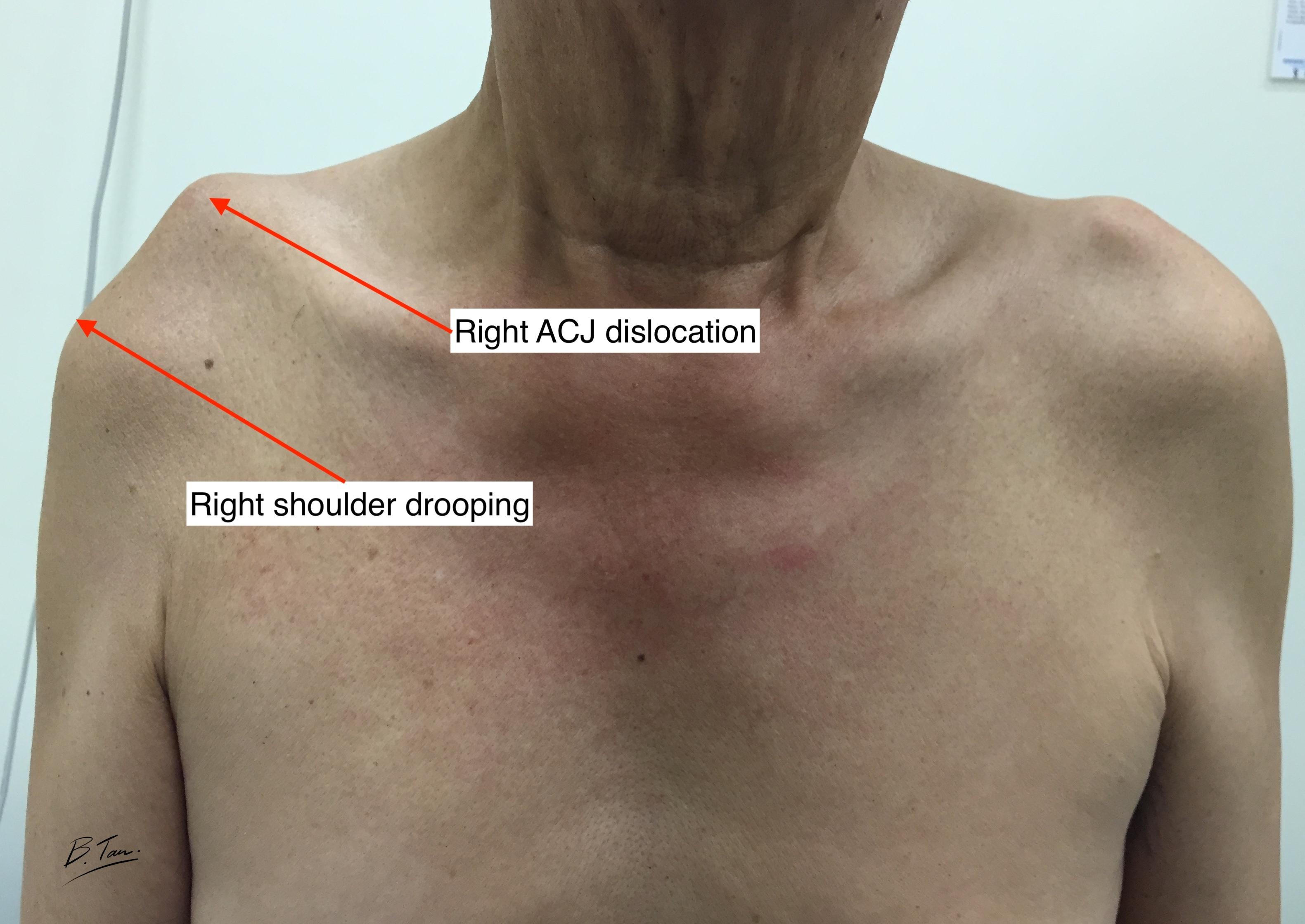 ACJ Dislocation Acromioclavicular joint dislocation