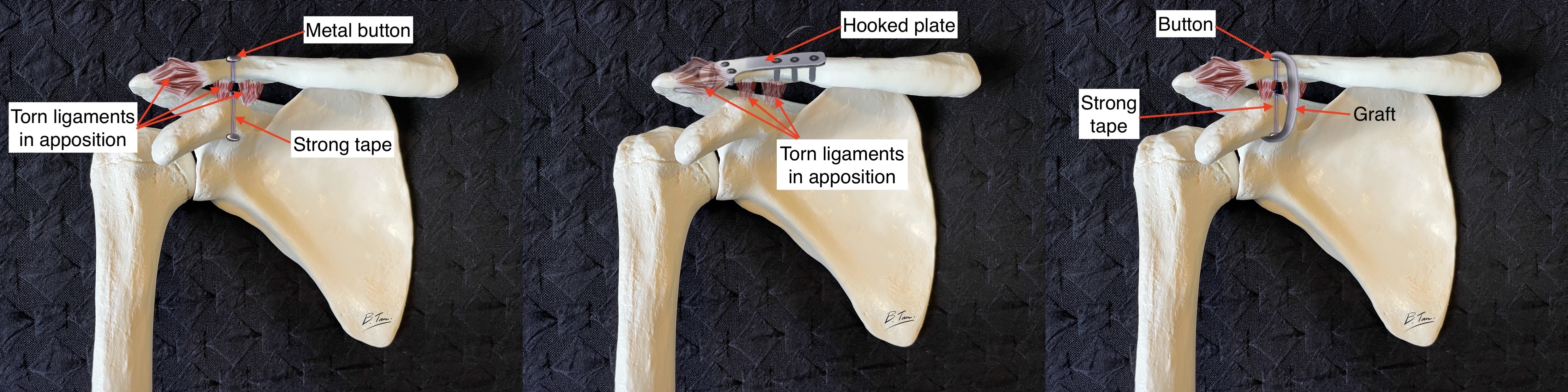 Suspensory vs hooked plate vs graft acromioclavicular joint reconstruction