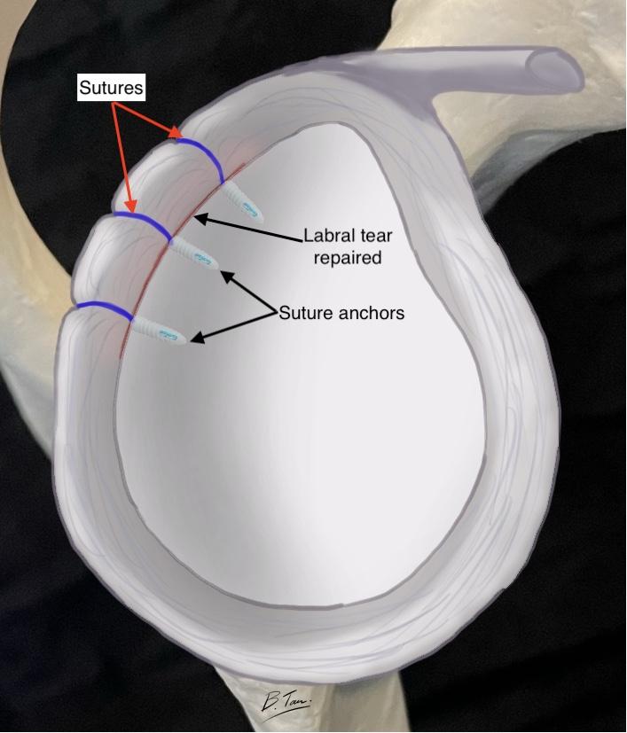 Posterior labral repair