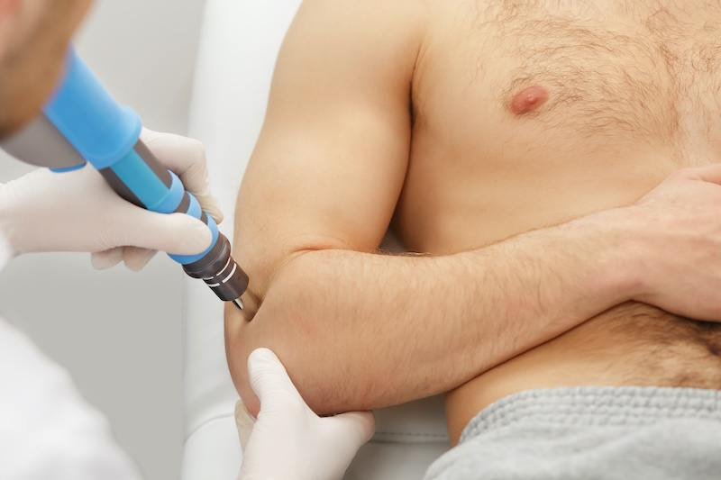 man getting shockwave therapy on elbow