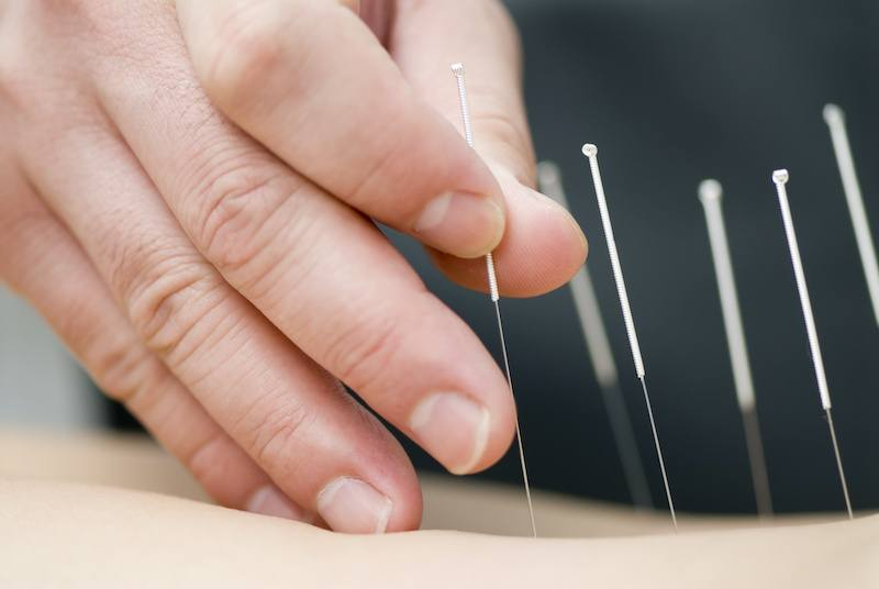 hand putting dry needling acupuncture needs into skin