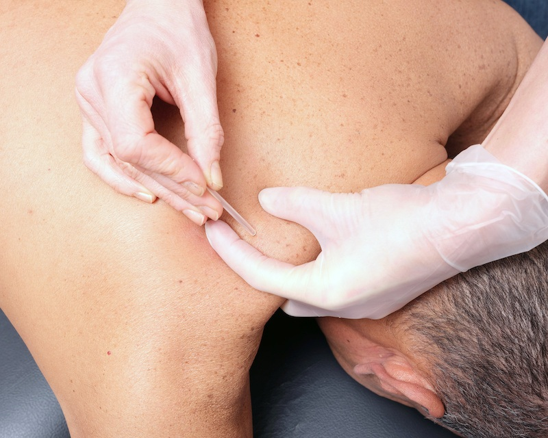 man getting dry needling acupuncture in shoulder region