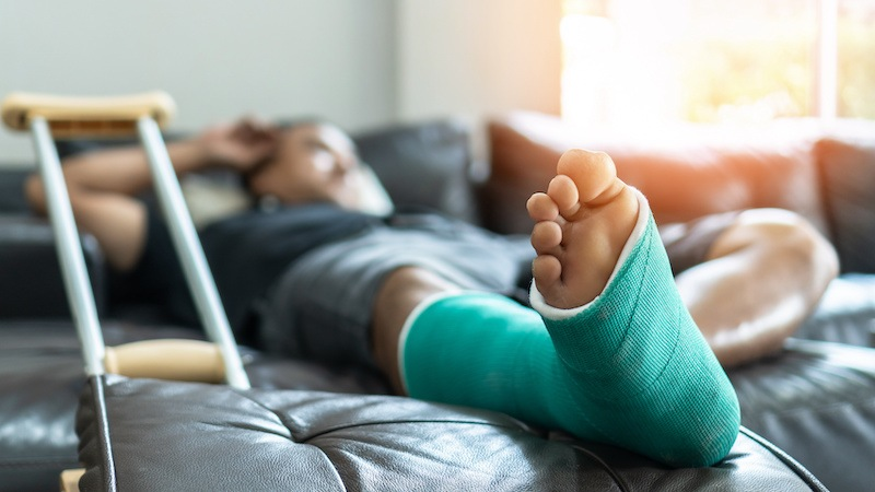 injured man laying on couch with leg cast on