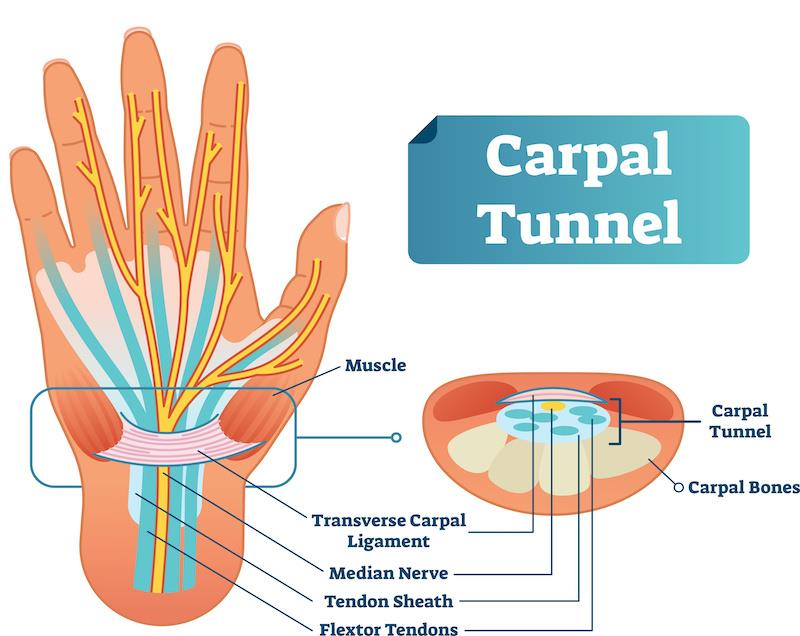 diagram of the hand showing the carpal tunnel