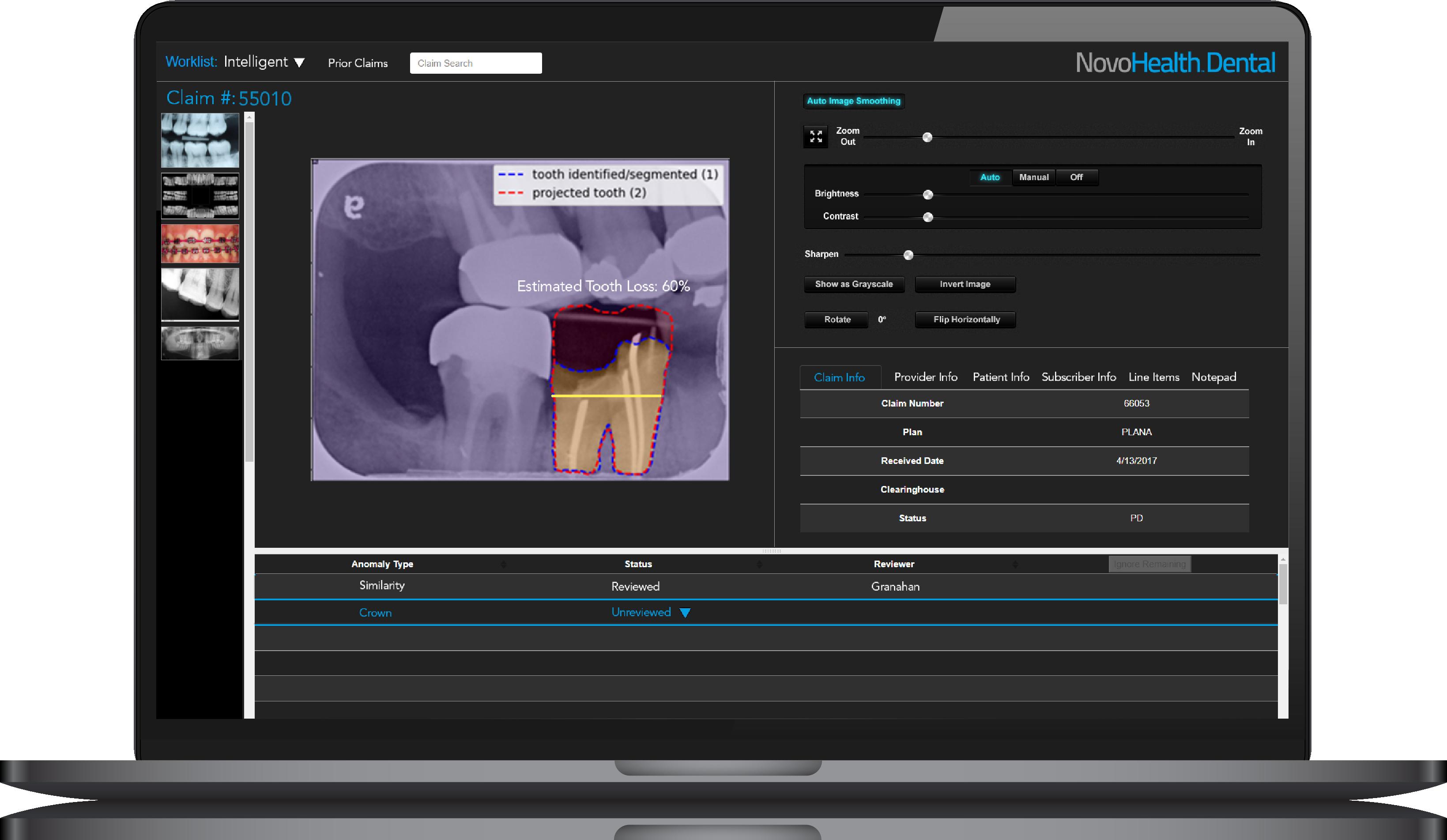NovoHealth Dental screenshot