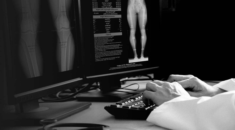 IB Lab LAMA - Leg Angle Measurement Assistant
