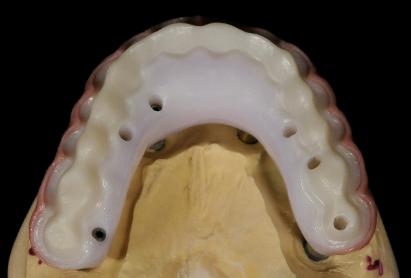 full arch zirconia restoration planning