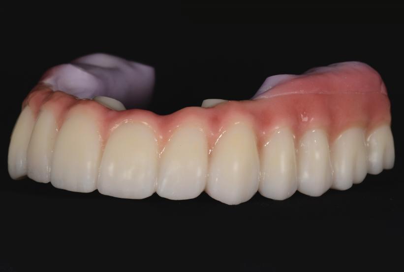 full arch zirconia implant restoration
