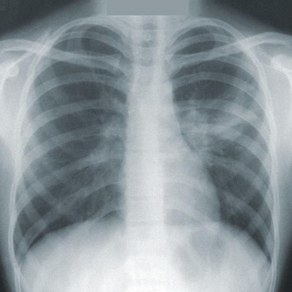 X-ray of human rib cage